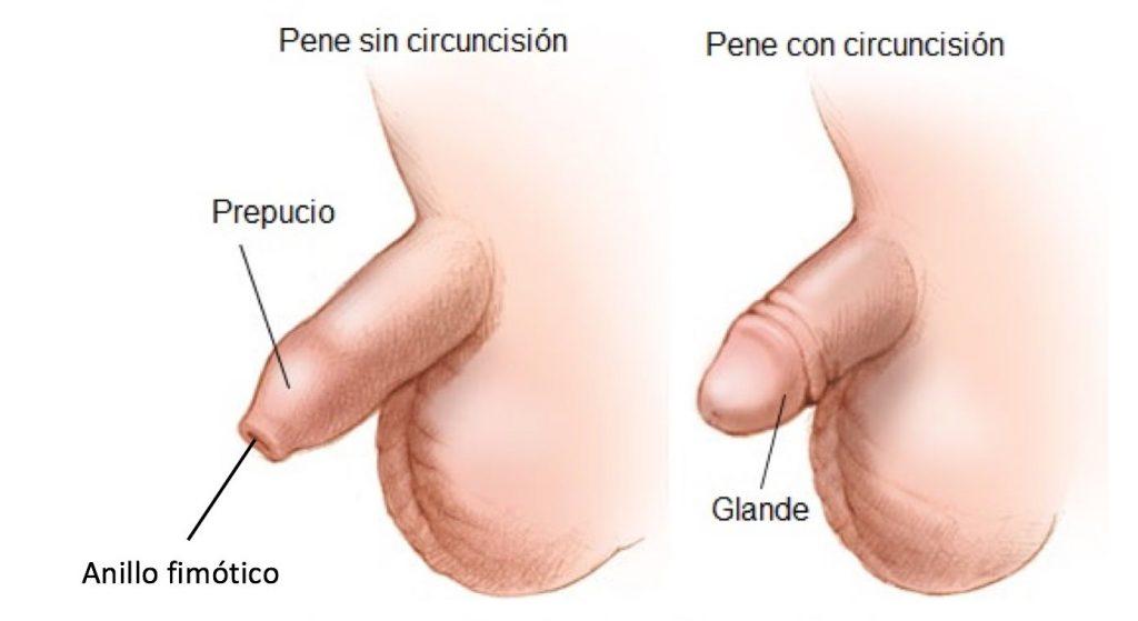 Circuncisión en Querétaro